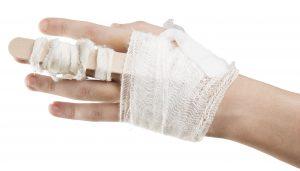 claim for a broken finger