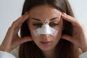Broken nose compensation guide